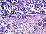 Origin and E-cadherin expression of a case of high grade serous ovarian carcinoma