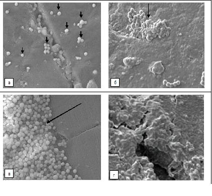 Роль стафилококков в полости рта в биодеструкции съемных протезов