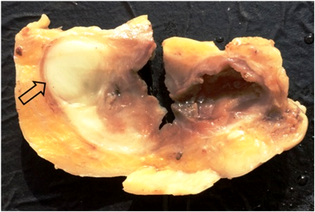 Benign inflammatory myofibroblastic tumor  in the wall of Meckel's diverticulum