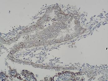 Deep infiltrating endometriosis mimicking rectal tumor